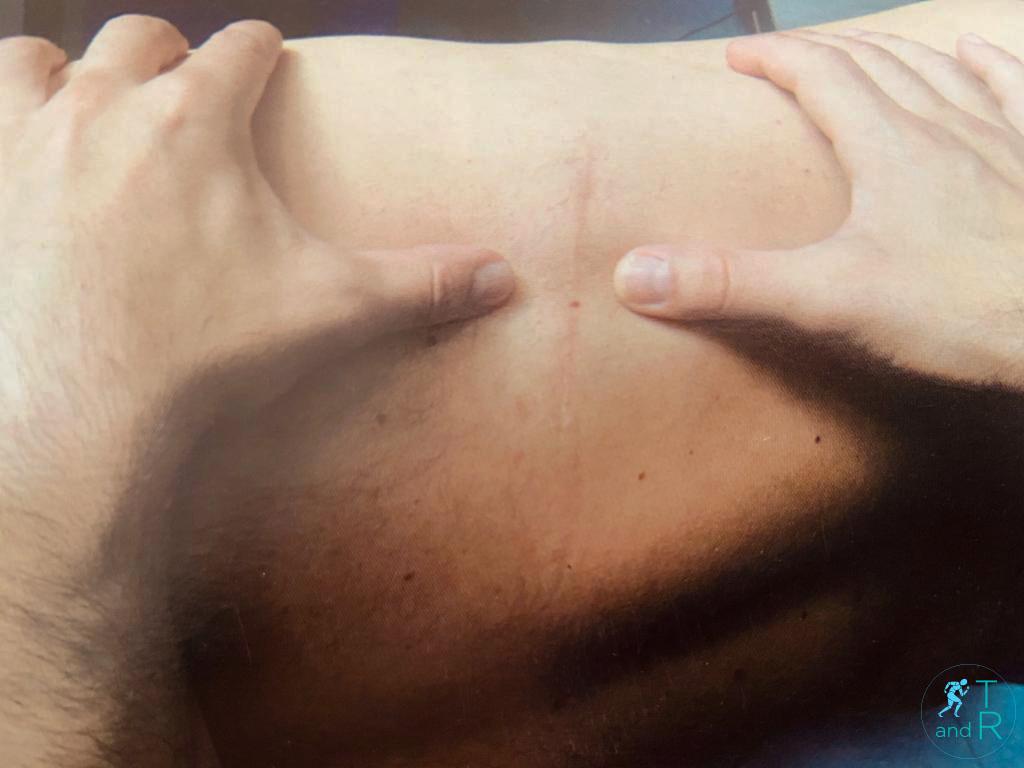 trattamento preventivo delle aderenze cicatriziali
