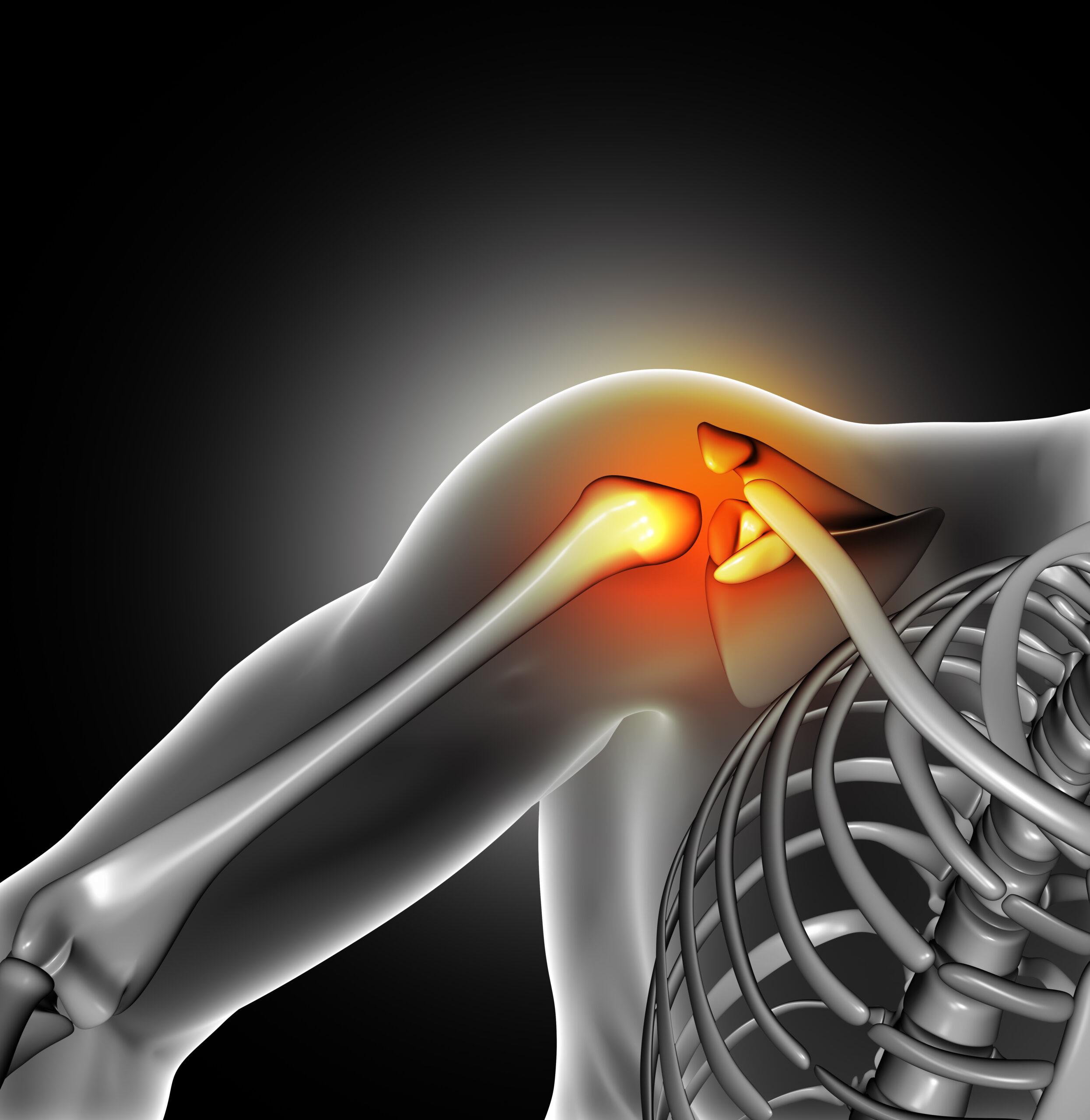 Cause, prevenzione e trattamento lesione della cuffia dei rotatori